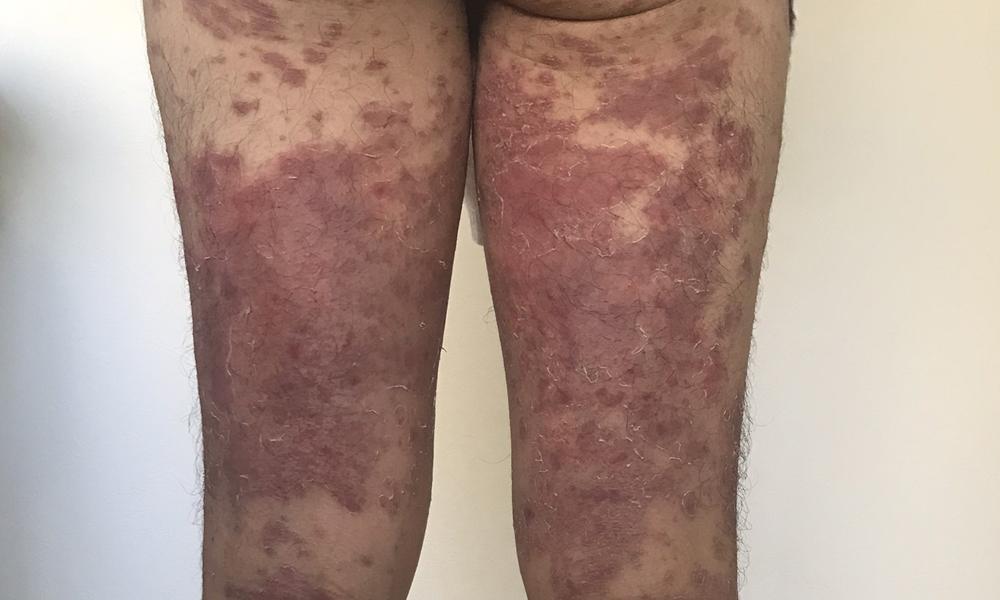 乾癬治る過程