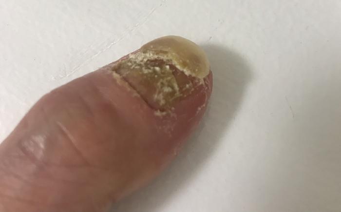 乾癬爪の症状