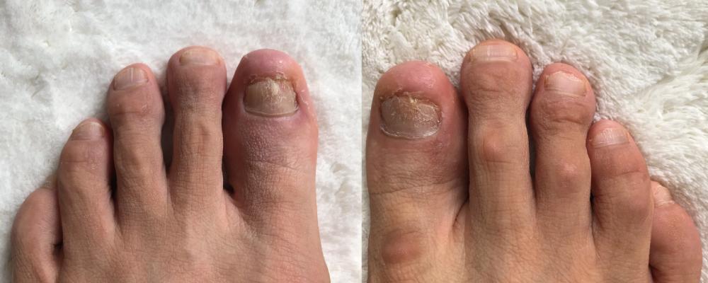 乾癬爪ボコボコ