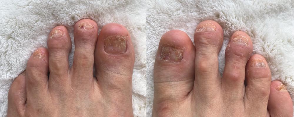 乾癬爪画像