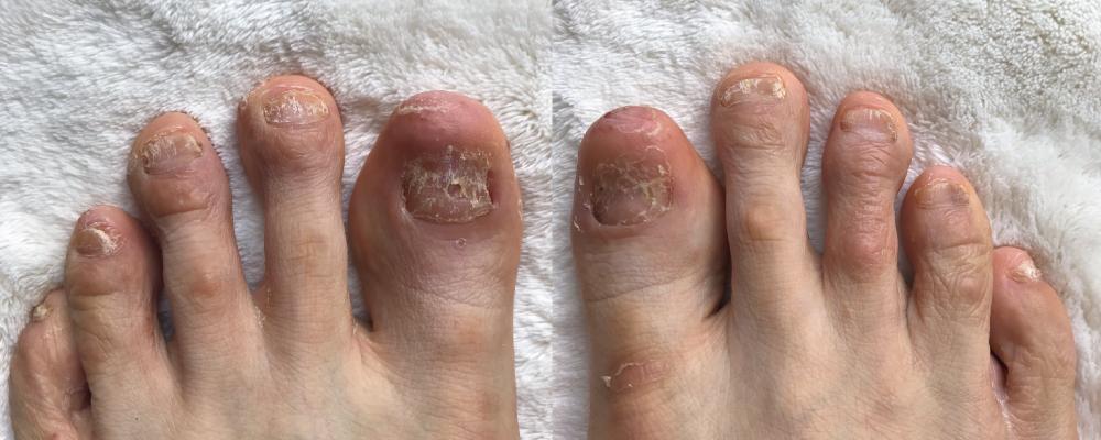 乾癬爪痛い