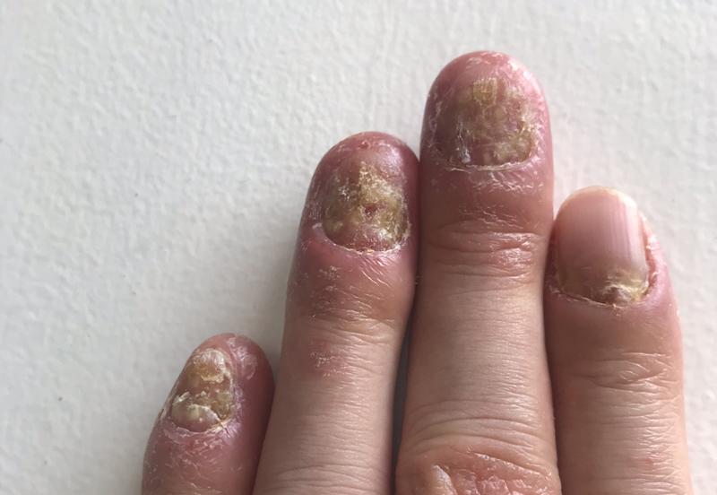 爪乾癬治療