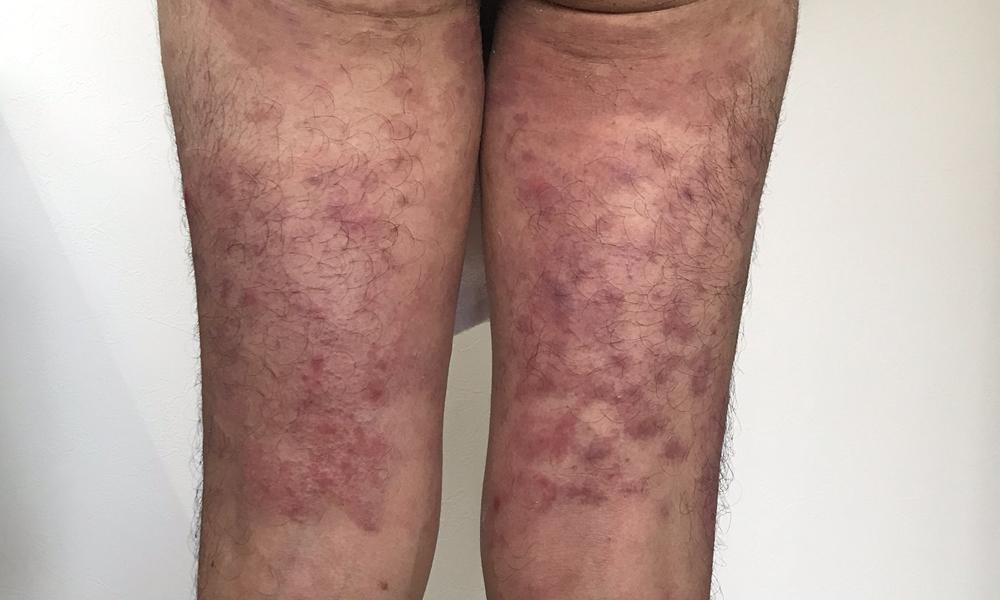 膿疱性乾癬ブログ