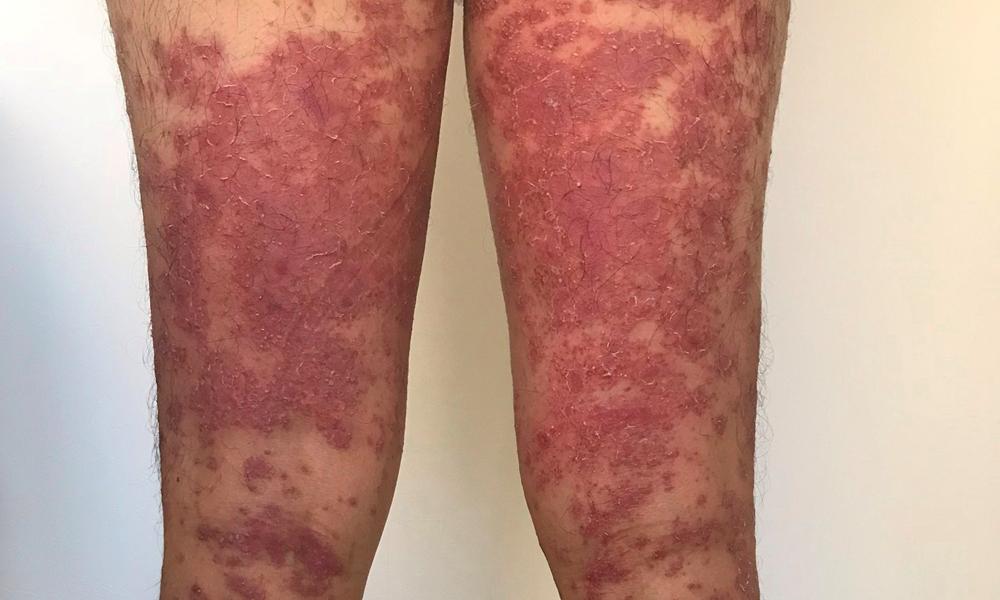 膿疱性乾癬完治