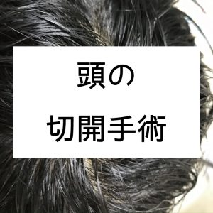頭に出来た粉瘤の手術